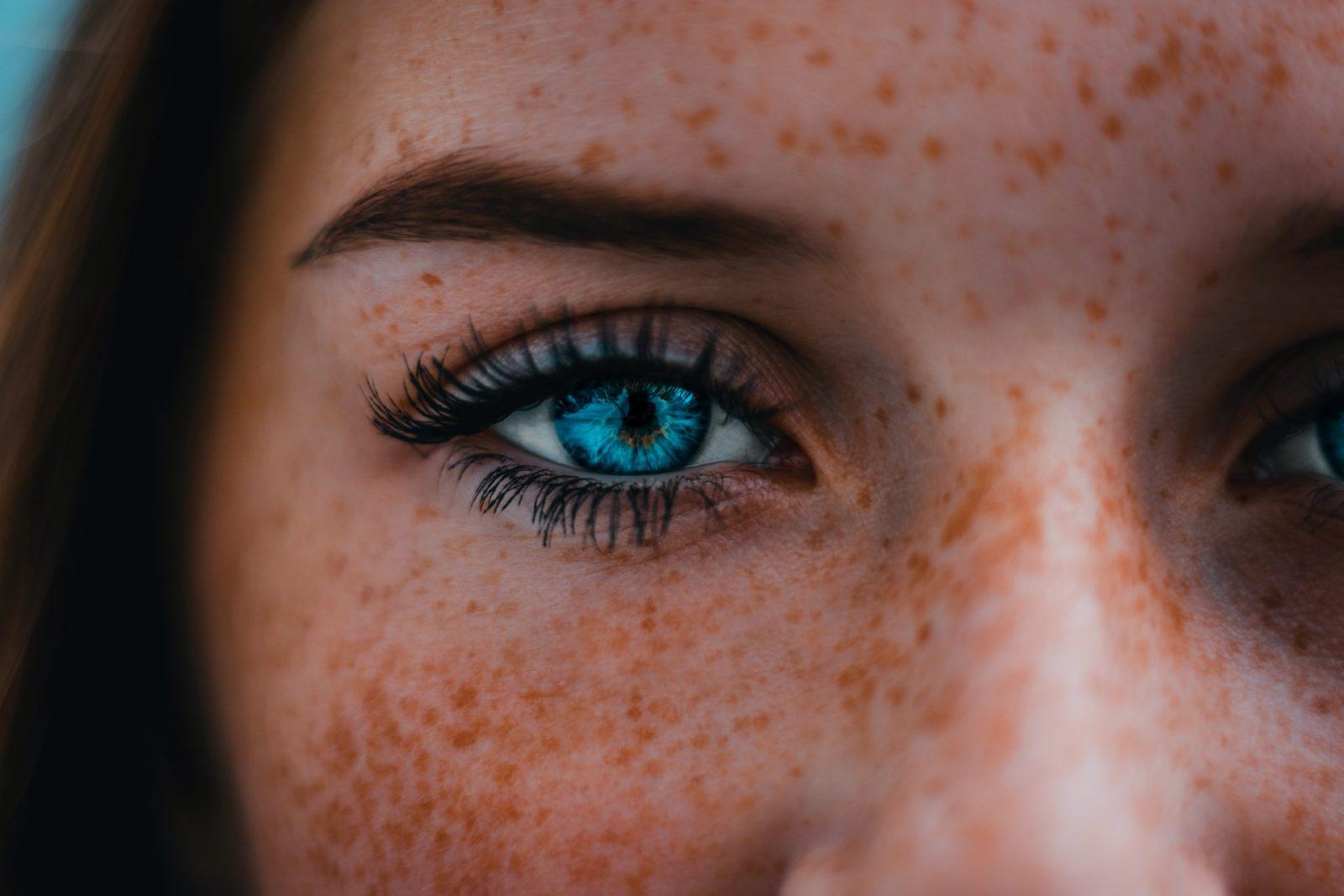 Vrouw met sproetjes, ingezoomd op oog. Vooraanzicht.